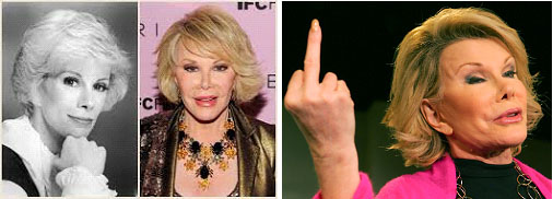 Joan Rivers multiple cosmetic surgeries