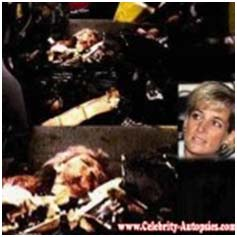 Lady Diana Dead