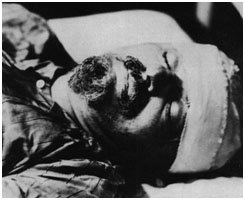 Leon Trotsky bandaged up shortly after he was attacked